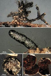 Colour plate of ectomycorrhizal root tips of Cenococcum geophilium on Picea engelmannii